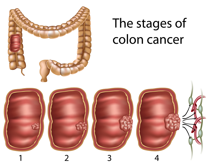 Etapas del cancer de colon